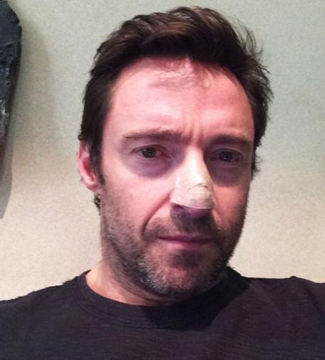 Hugh Jackman postet dieses Bild von sich auf Instagram nachdem ihm gefährliche Krebszellen entfernt wurden.  © instagram/hughjackman