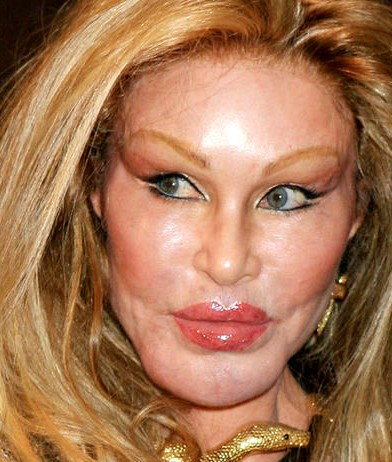 Jocelyn-Wildenstein-plastic-surgery-gone-wrong-too-much-392x462
